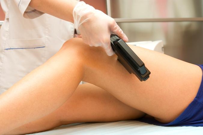 Varicose-veins-treatment-laser